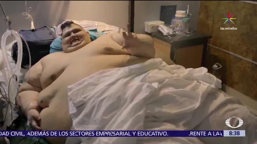 Juan Pedro Franco, 595 kilos, estómago, bypass gástrico