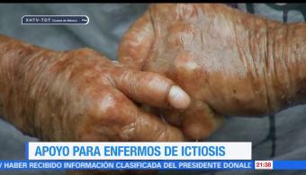 Aumentan, casos, ictiosis, Pajapan Veracruz, piel escamosa, enfermedades genéticas