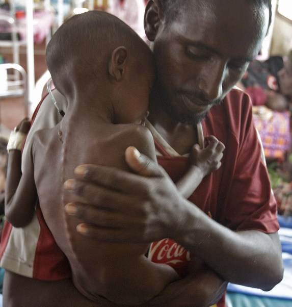 ONU alerta que 40% de la población de Sudán del Sur está en peligro de hambruna (AP)