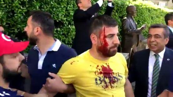 embajada de Turquía, Washington, enfrentamiento, erdogan,