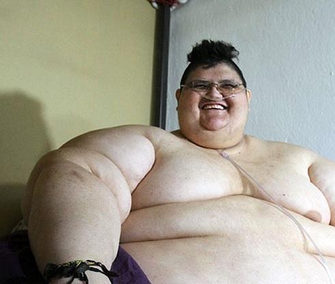 Juan Pedro Franco, el hombre más obeso del mundo, que llegó a pesar 595 kilogramos (Notimex)