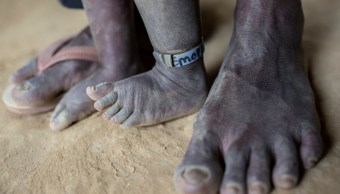 ONU prevé que 550 millones de personas permanezcan en la pobreza extrema (Getty Images)