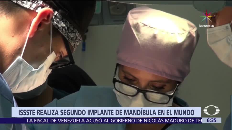 ISSSTE, cirugía de implante, mandíbula, Especialistas