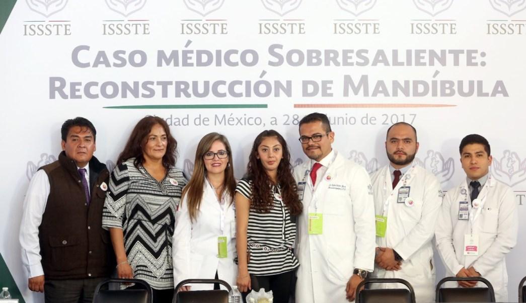 Especialistas del ISSSTE realizarón el segundo implante de prótesis total de mandíbula en el mundo. (Twitter: @ISSSTE_mx)