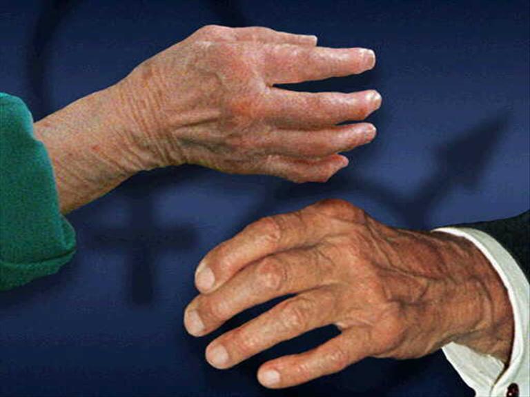 Manos de pacientes con artritis, enfermedad crónico degenerativa