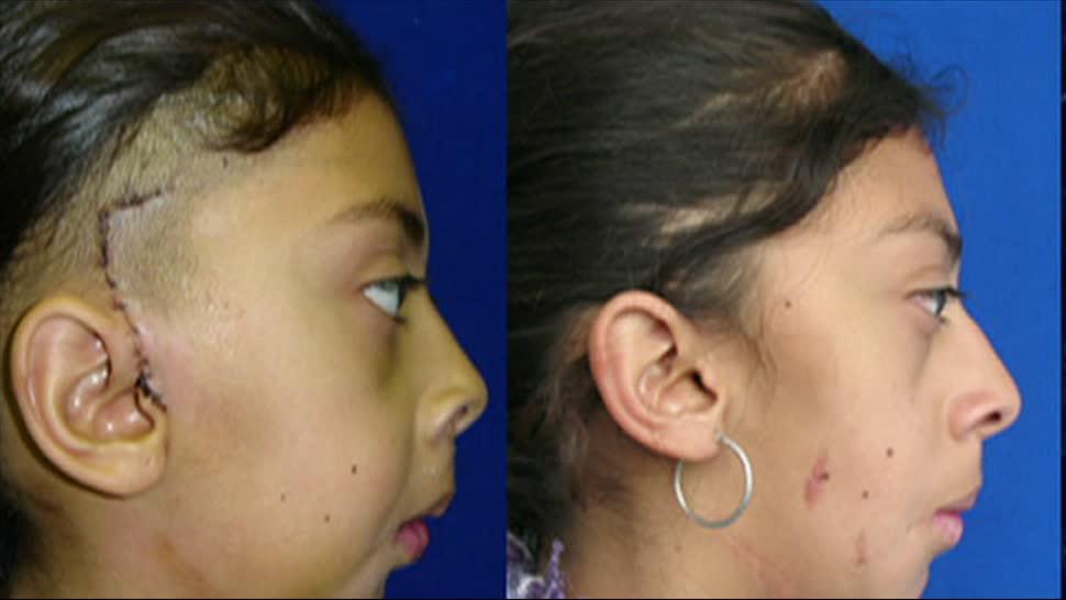 ISSSTE, segundo, implante, mandíbula, mundo, avances medicinales