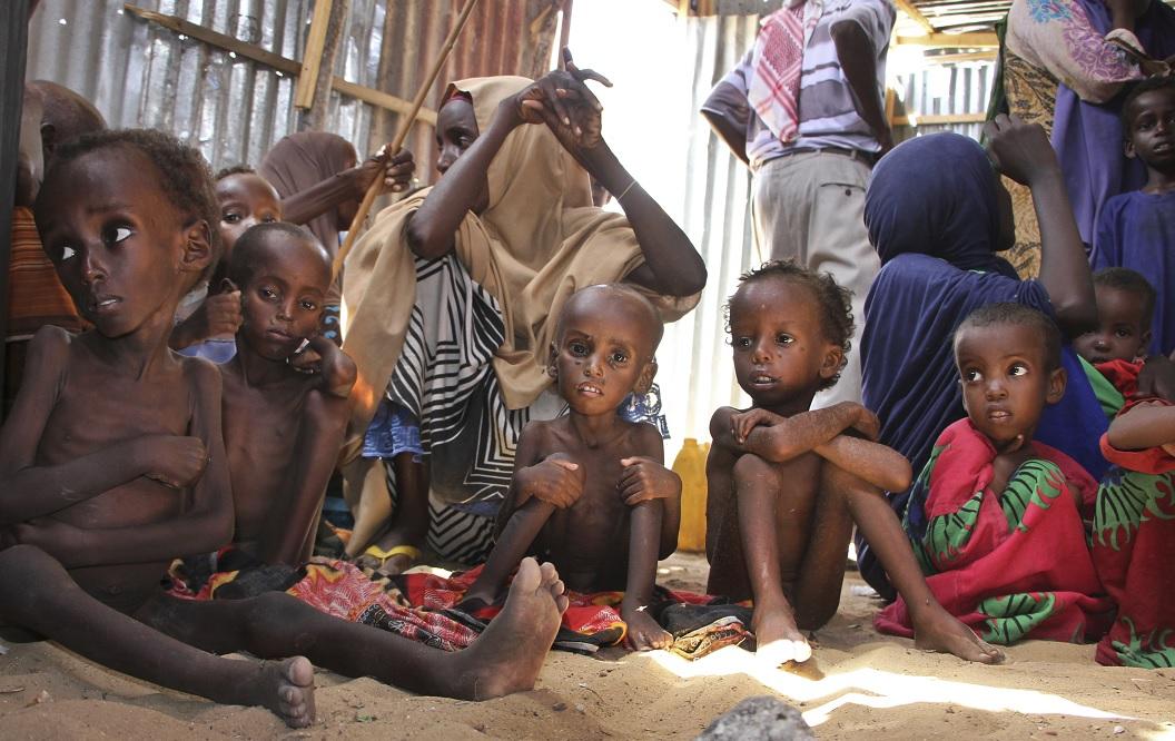Se prevé que a finales de año cerca de 1.4 millones de niños sufrirán desnutrición en Somalia (AP)