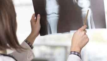 Cáncer, Osteosarcoma, Cancerología, juegos paralímpicos, Tokio, 2020, salud