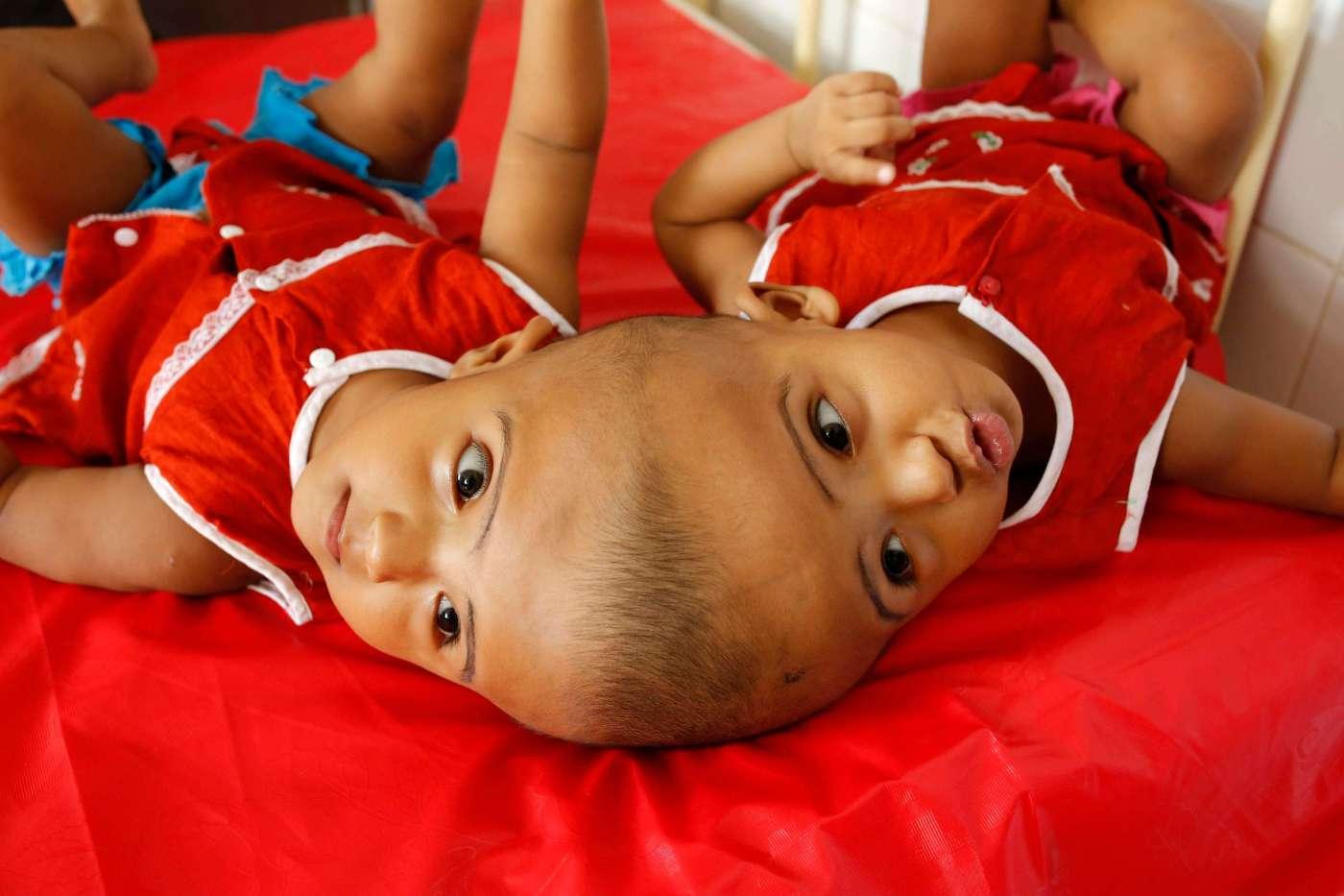 Siamesas Rabeya Rokeya Bangladesh Médicos Cirugia