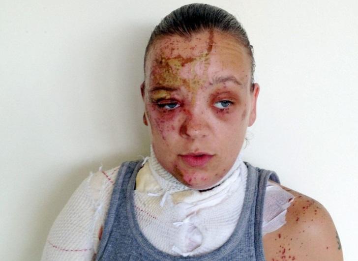 Taraq Quigley fue atacada con ácido en la cara en Londres (The Sun)