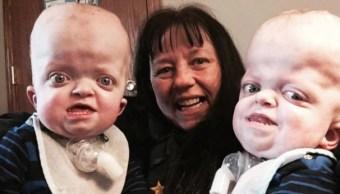 Enfermera adopta a unos gemelos con una deformidad genética en el cráneo