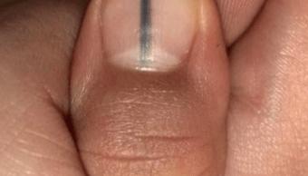 mancha uña, manicurista, cáncer, melanoma