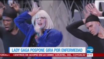 #LoEspectaculardeME: Lady Gaga pospone gira por enfermedad