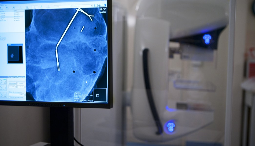 Detección de cáncer mamario