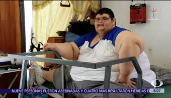 El mexicano más obeso del mundo pierde 230 kilos tras bypass gástrico