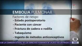 Tromboembolia pulmonar, tercera causa de muerte cardiovascular en el mundo