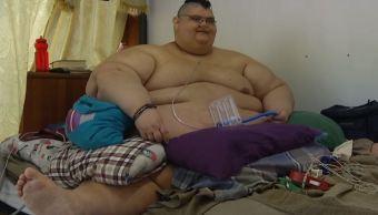 El hombre más gordo del mundo se somete a cirugía en Guadalajara