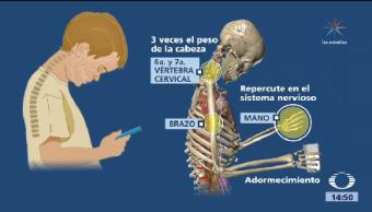 Uso Indiscriminado Celulares Tabletas Afecta Vértebras Cervicales Niños Mexicanos