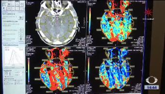 Cannabidiol Podría Funcionar Antipsicótico Científicos De Londres