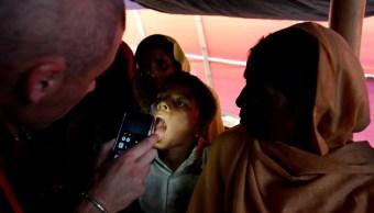 Detectan 722 casos de difteria en Bangladesh