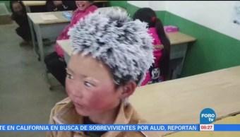 Extra Extra: Niño con cabello congelado en china