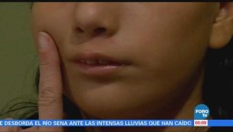 24 de enero: Día Internacional del Síndrome Moebius