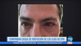 Confirman causa de irritación de los ojos de EPN