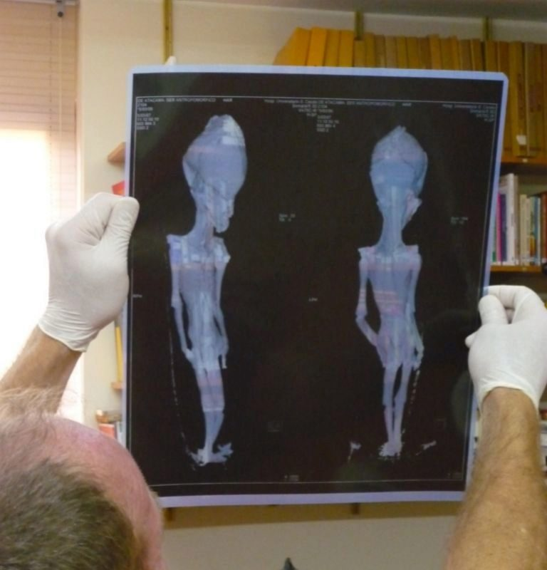Revelan misterio esqueleto alienígena Atacama Chile