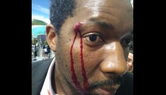 Mujer ataca a botellazos a actor en España por ser negro