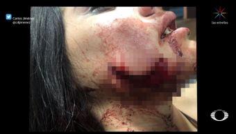 Dictan prisión preventiva a sujeto que mordió a su novia