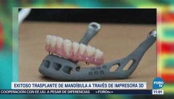 Extra Extra: Exitoso trasplante de mandíbula a través de impresora 3D