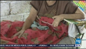 Lepra Enfermedad Viral Vigente Medicina Salud