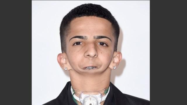 Isaiah Acosta, joven sin mandíbula que se comunica a través del rap