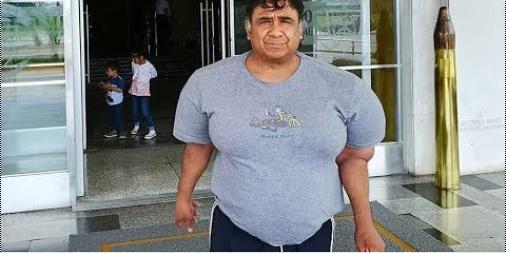 buzo sufre hinchazon por salir del mar en perú