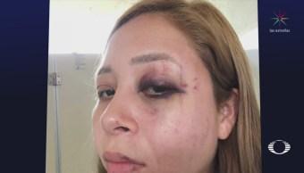 Esposa Alcalde Pijijiapan Denuncia Violencia Golpiza