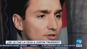 Se Cae Ceja Justin Trudeau Durante Conferencia Canadá