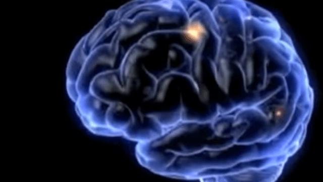 Cerebro, Muerte, Investigadores, Cuerpo, Actividad, Parnia