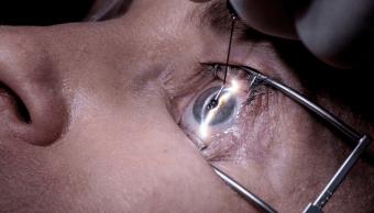 Imprimen primeras córneas humanas en 3D