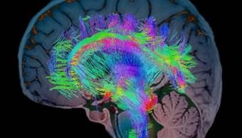 Científicos descubren gen que moldeó el cerebro humano