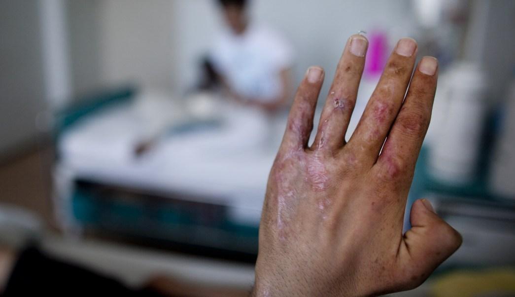 UNAM, Hidrogel, Farmacos, Cicatrizar, Heridas, Quemaduras, Polimero