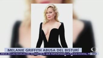 Melanie Griffith queda irreconocible tras cirugías plásticas