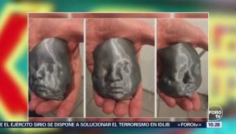 Extra, Extra: Conocen a hijos por ecografía 3D