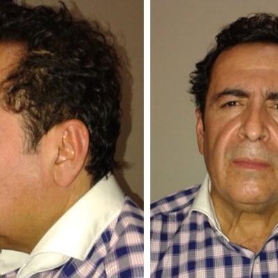 Estrés por extradición pudo haber ocasionado infarto a Beltrán Leyva
