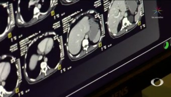 App Permite Diagnóstico Temprano Alzheimer Salud