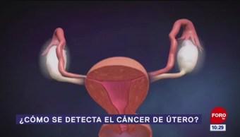¿Cómo se detecta el cáncer de útero?