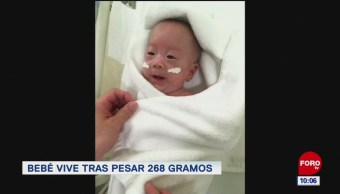 Extra, Extra: Bebé vive tras pesar 268 gramos