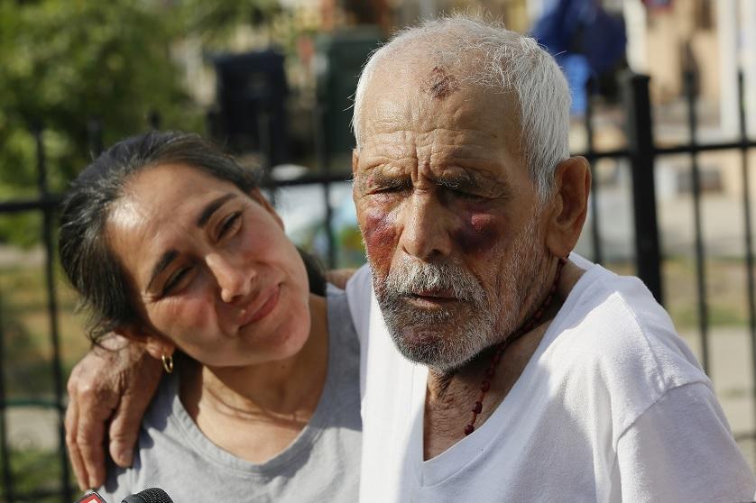 Foto: Aurelia Rodríguez (izquierda) sostiene a su padre, Rodolfo Rodríguez, de 92 años, víctima de una mujer que lo golpeó con un ladrillo en Willowbrook, Los Angeles, EEUU, el 11 de julio de 2018