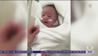 Hospital en Japón da de alta al bebé más pequeño del mundo