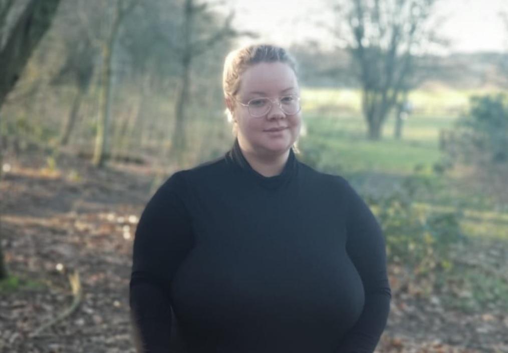 Extraña enfermedad provoca que los senos de una mujer no paren de crecer