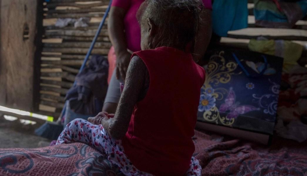 Niña 'piel de pescado' de Nicaragua recibe un milagro de un ángel